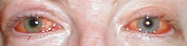 red eyes.jpeg